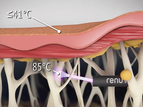 figure_3_thermal-diffusion_500w